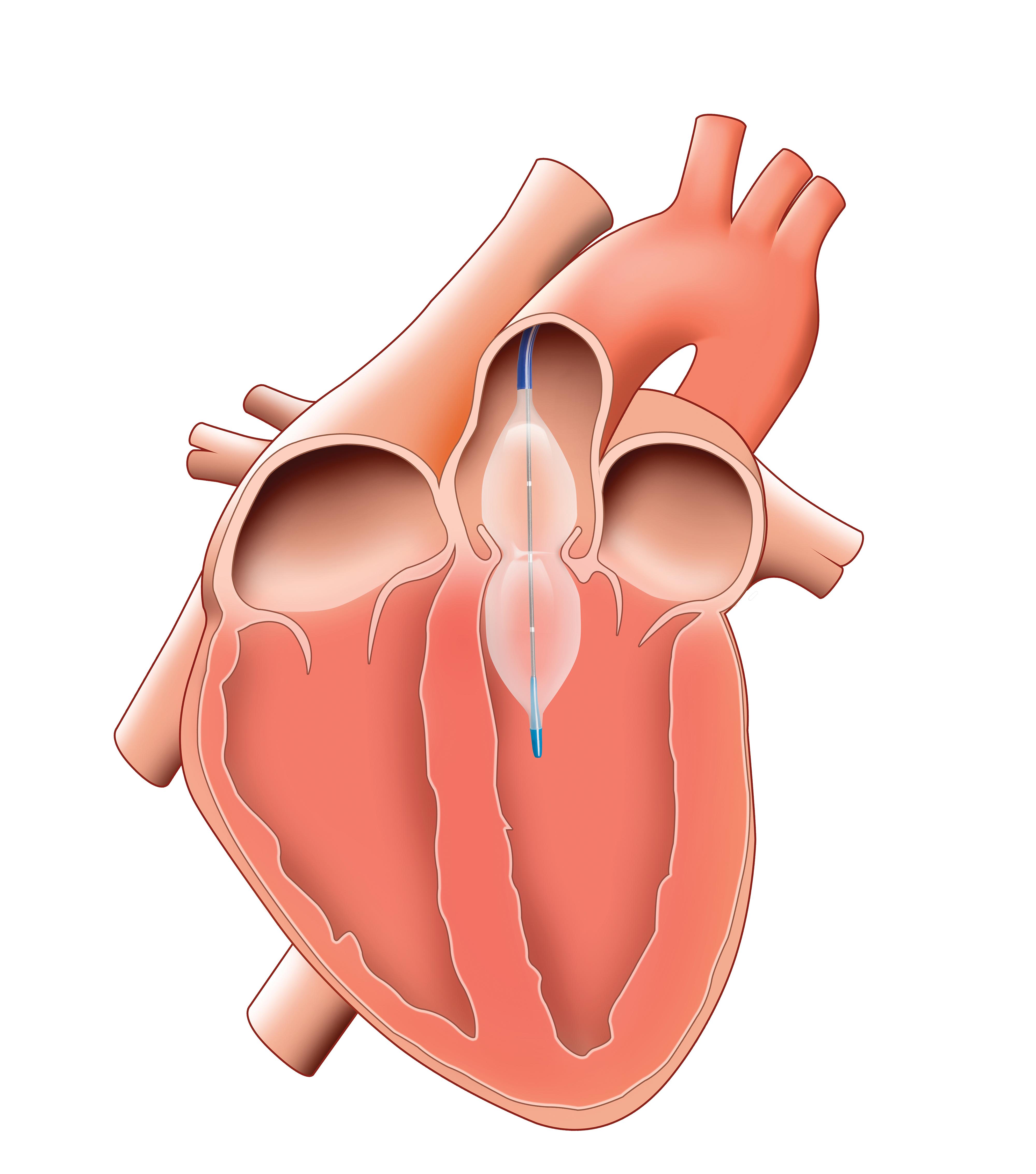 InterValve   Balloon Aortic Valvuloplasty Catheter